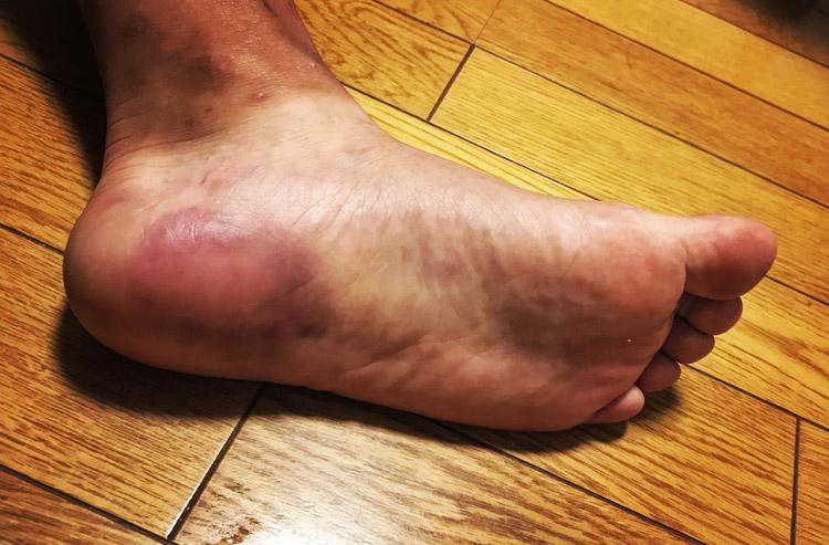 かかと病の左足