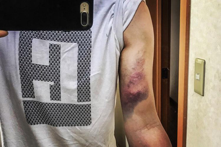 コーピングで怪我し内出血した右腕