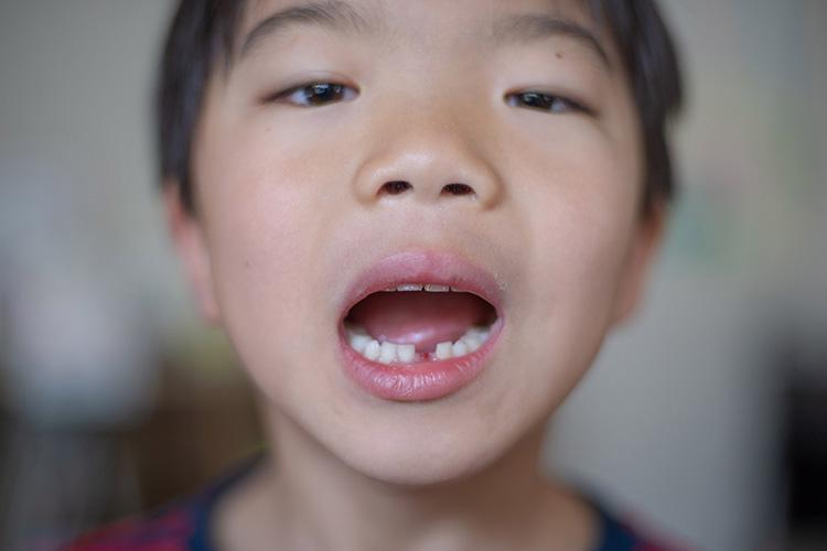 乳歯が抜けた叶大